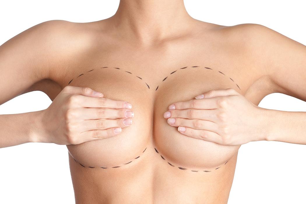 cirugia-de-mamas-1